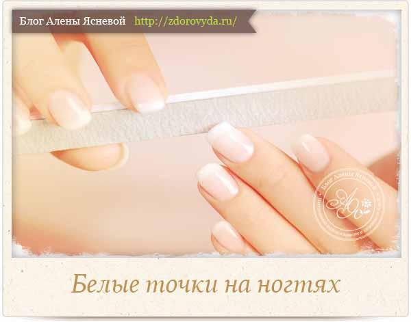 белые пятнышки на ногтях